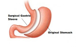 Surgical Gastric Sleeve