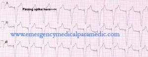 Paced Rhythm ECG